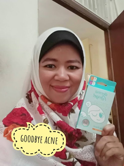 goodbye acne