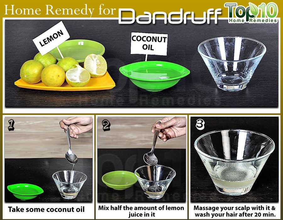 cara menghilangkan ketombe dengan minyak kelapa